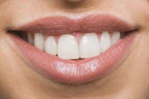 Hvordan at polere tænder derhjemme