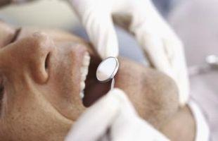 Hvordan til at rense pletter fra forlorne tænder